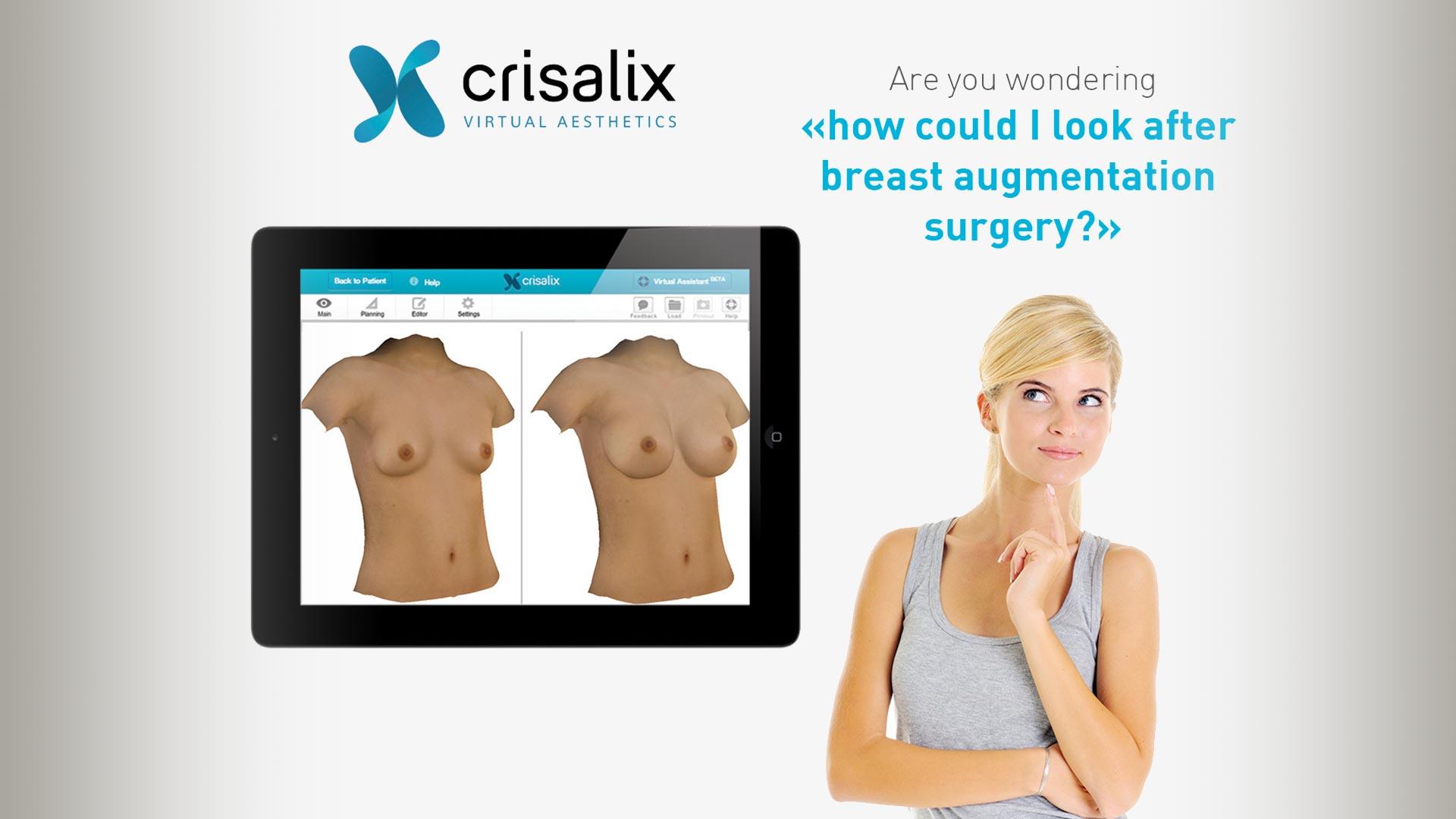3d-simulation-patient-plastische-chirurgie